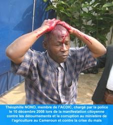 Téophile Nono, membre de l\\\\\'ACDIC a été violemment blessé